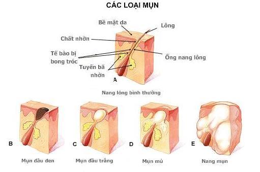 cach-tri-mun-hieu-qua-khong-de-lai-seo-tren-da