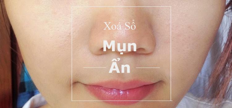 mun-an